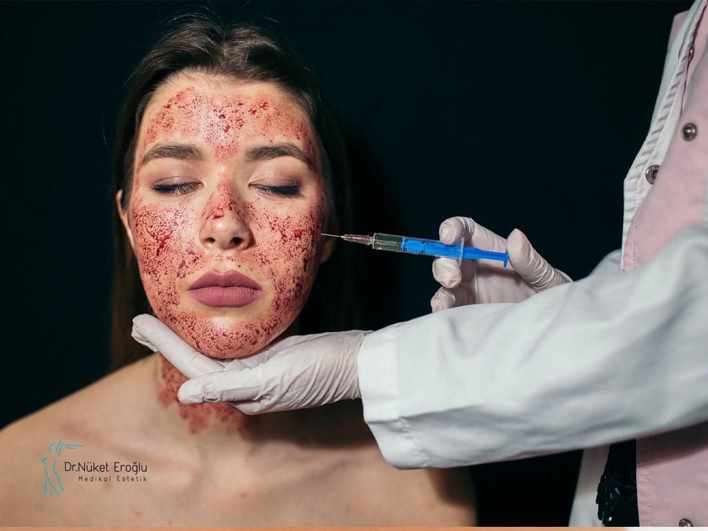 كيف تعمل عملية شد الوجه مصاص الدماء؟