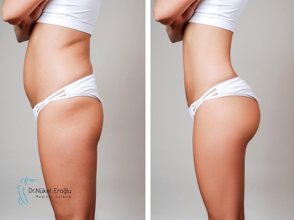 النتائج التي يمكننا الحصول عليها من عملية إذابة الدهون وشد الجلد بالليزر ثلاثي الأبعاد وماهي فترة بقائها؟